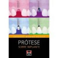 Prótese Sobre Implantec - 1 Edição 2012