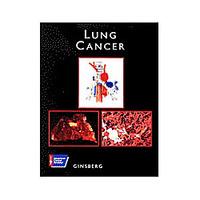 Lung Cancer - Livro