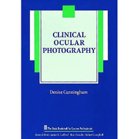 Clinical Ocular Photography